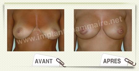 Rupture d'implants mamaires en srum phy - Forums - Onmedafr